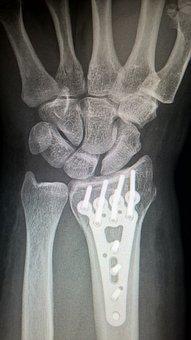 Bone Fixation Plate Testing